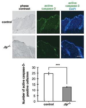 紫外線誘導性アポトーシスにおける足場タンパク質JLPの役割