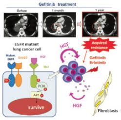 HGFによるゲフィチニブ耐性の分子機構