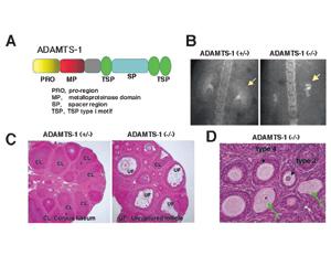 ADAMTS-1遺伝子欠損マウスの腎臓,卵巣における異常。