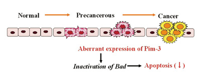 Aberrant expression of a serine / threonine kinase, Pim-3 in malignant lesions
