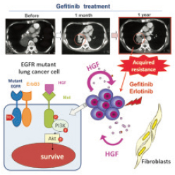 Molecular mechanism by which HGF induces resistance to gefitinib in EGFR mutant lung cancer