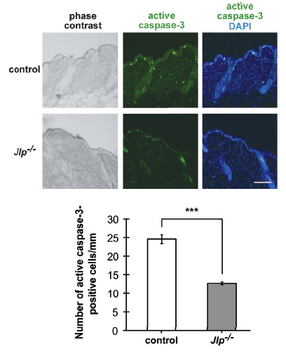 Gastric tumorigenesis was significantly